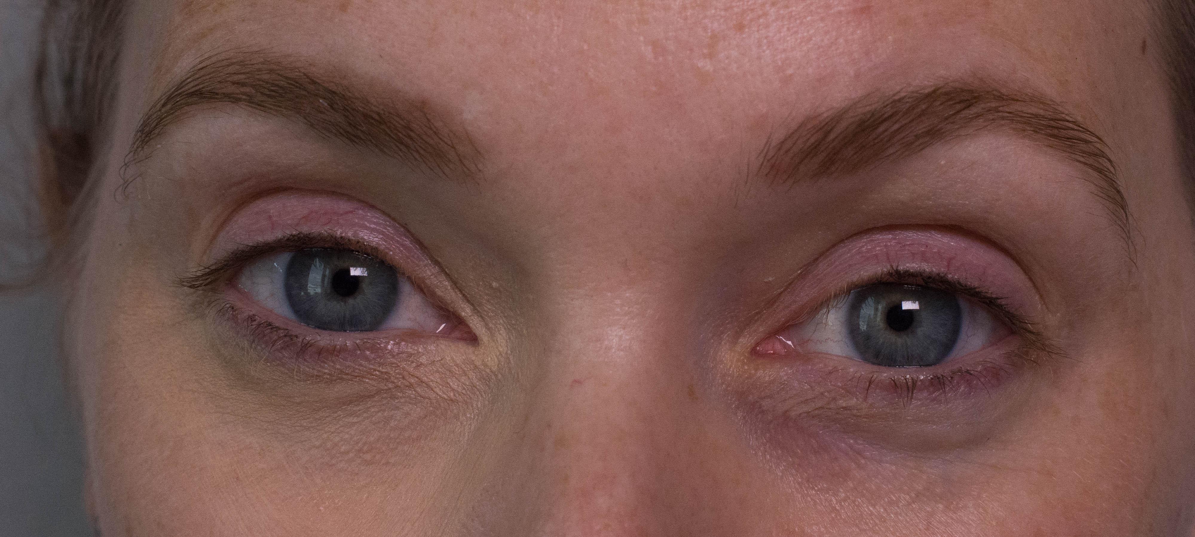The Eraser Eyes (1 von 1)