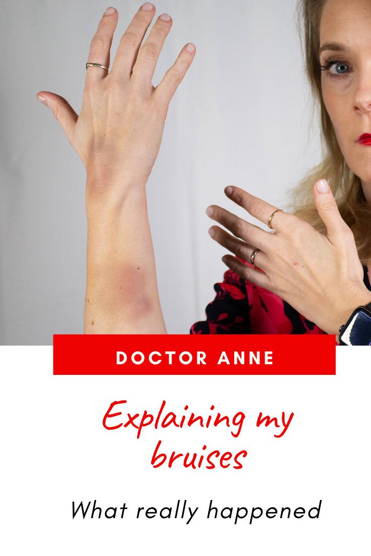 Explaining my bruises