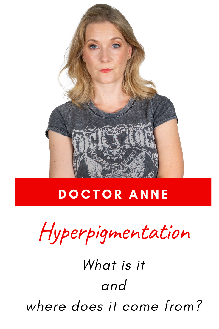 What is hyperpigmentation and where does it come from?