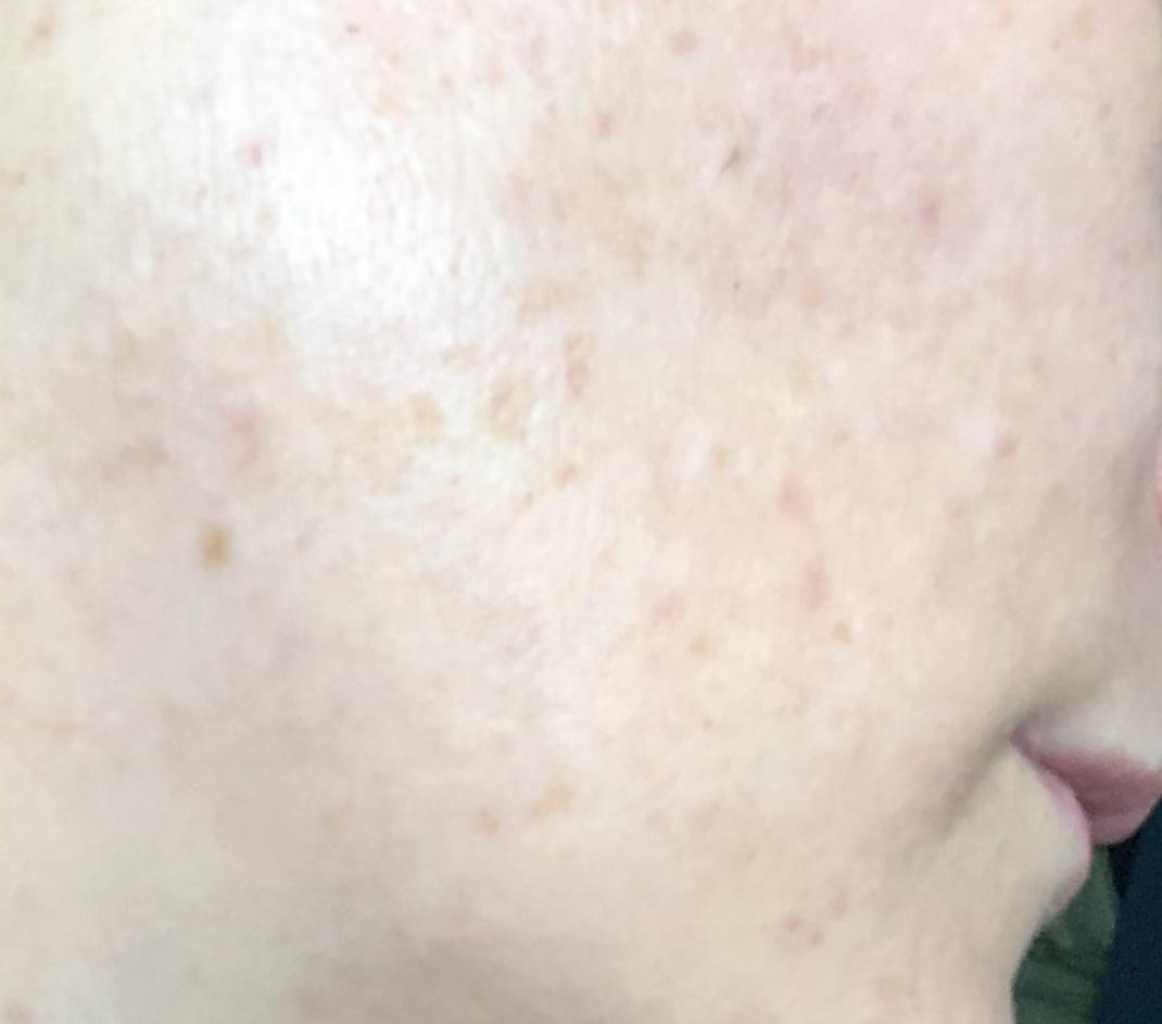 Age spots on my face