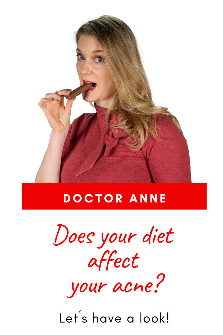 The effect of diet on acne
